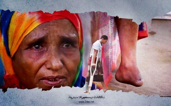 تقرير فيديو | تهجير وقتل وإعاقة وخطف .. أم عبدالله تحكي إجرام الحوثيين بحقها وأبناءها